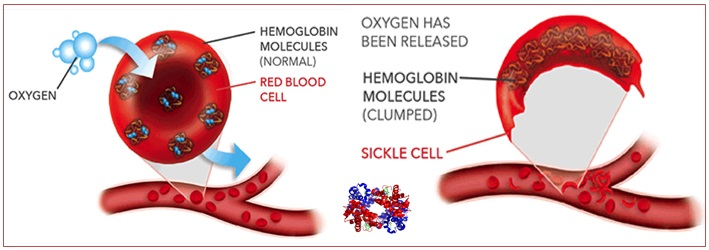 Effect of Hbs on accuracy of pulse oximetry in blood oxygen saturation level measurement among adult patients with sickle cell disease